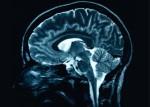 Brain-Scan-560x400